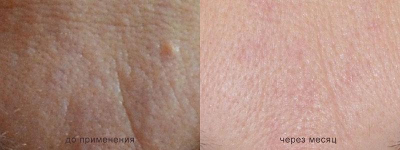 крем со слизью улитки фото кожи до и после