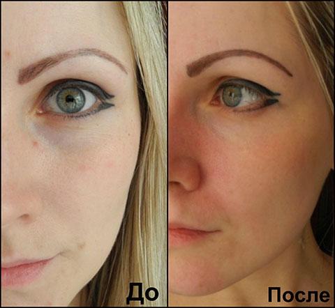 Спот Клинер фото до и после